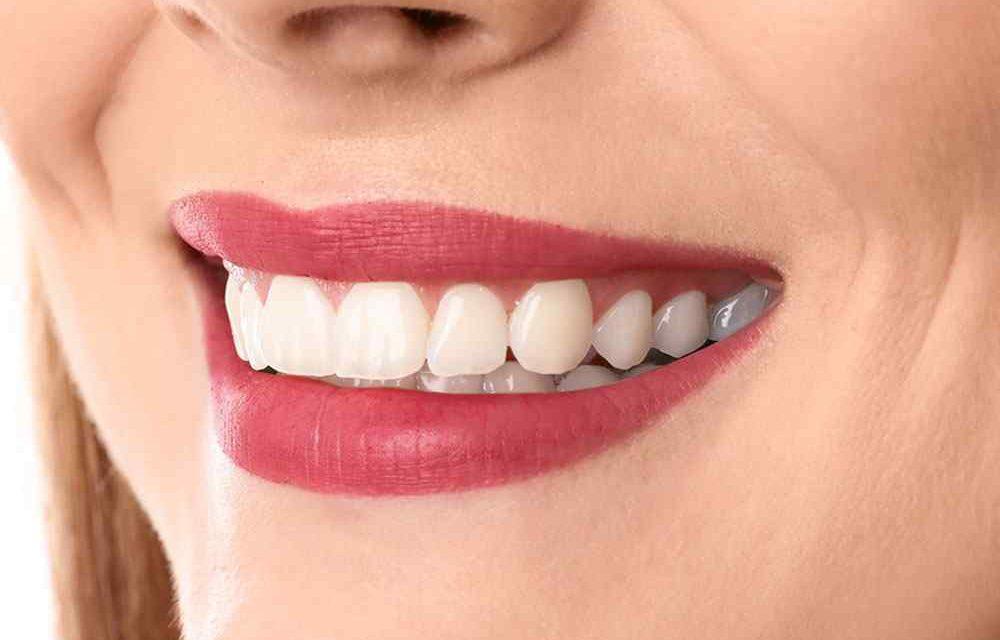https://www.aestheticsmilesindia.com/wp-content/uploads/2020/02/teeth-after-1000x640.jpg