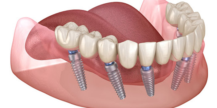 https://www.aestheticsmilesindia.com/wp-content/uploads/2021/01/All-On-68-Dental-Implants.jpg