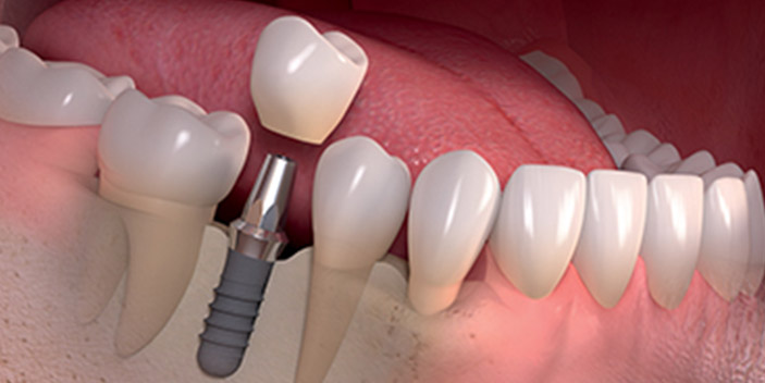 https://www.aestheticsmilesindia.com/wp-content/uploads/2021/01/Immediate-Dental-Implants-thumb-2.jpg