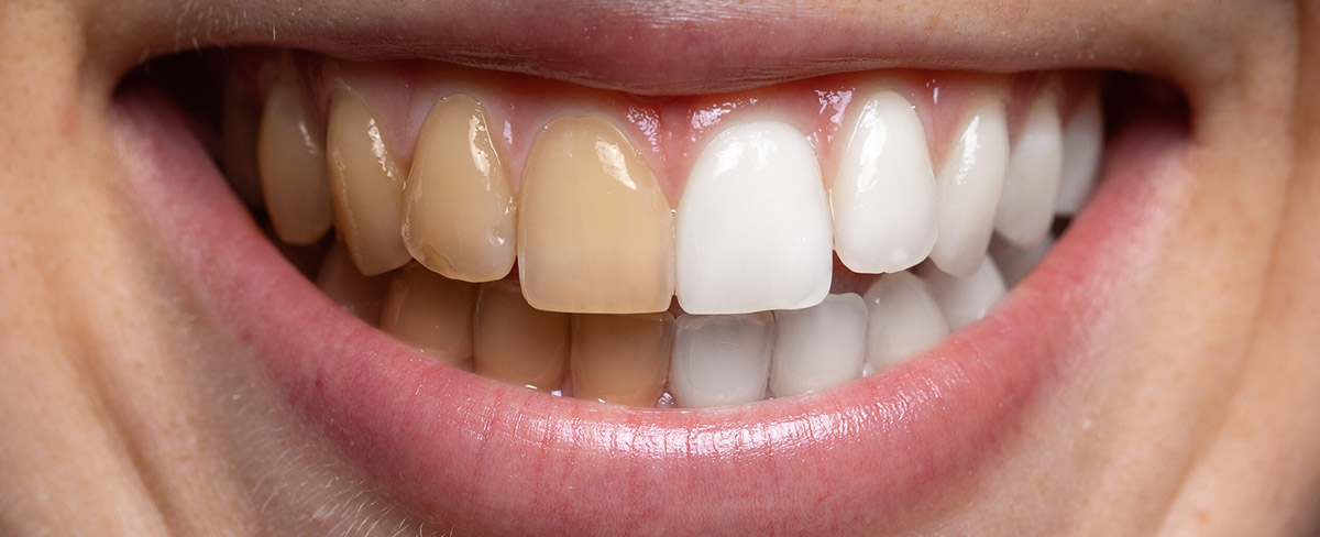 https://www.aestheticsmilesindia.com/wp-content/uploads/2021/01/TEETH-WHITENING-in-MUMBAI-THE-DEFINITIVE-GUIDE.jpeg