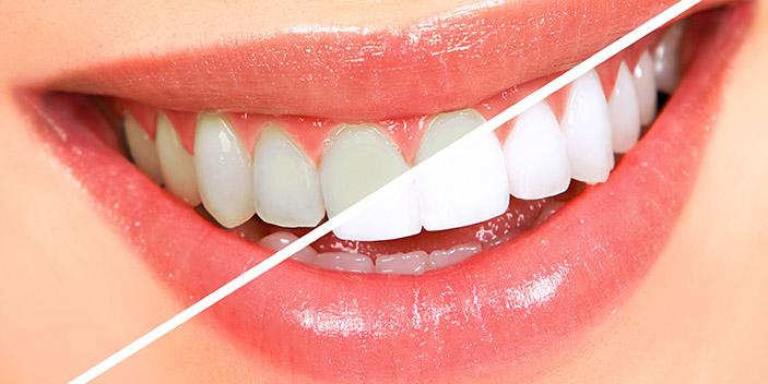 https://www.aestheticsmilesindia.com/wp-content/uploads/2021/01/Tooth-Whitening-dental-treatment.jpg