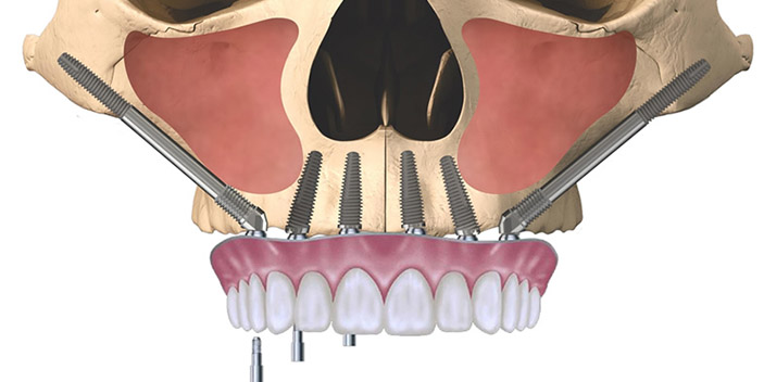 https://www.aestheticsmilesindia.com/wp-content/uploads/2021/01/Zygomatic-Implants.jpg