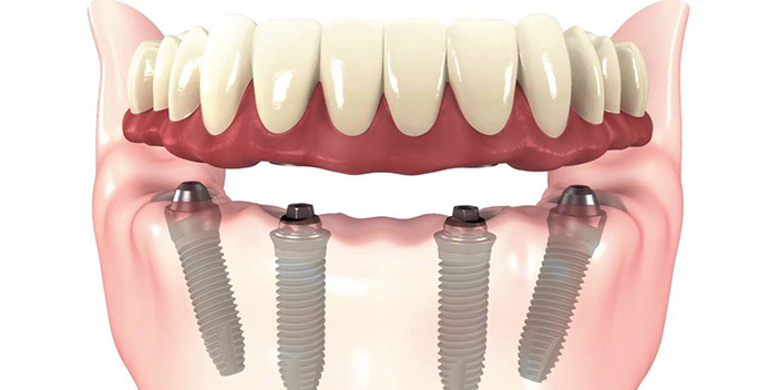 https://www.aestheticsmilesindia.com/wp-content/uploads/2021/01/all-on-4-dental-implants.jpg