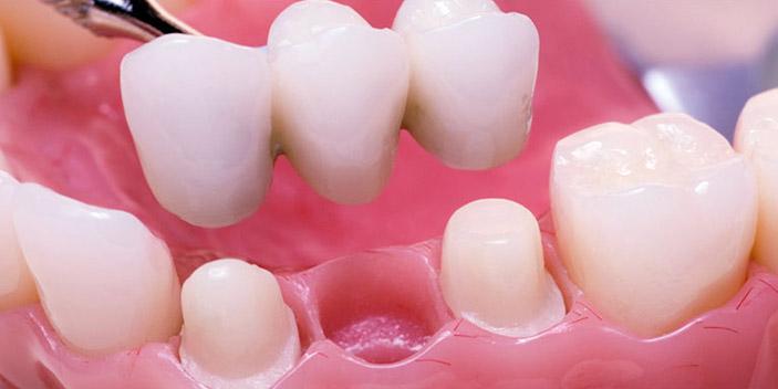 https://www.aestheticsmilesindia.com/wp-content/uploads/2021/01/dental-crown-and-bridges-treatment.jpg