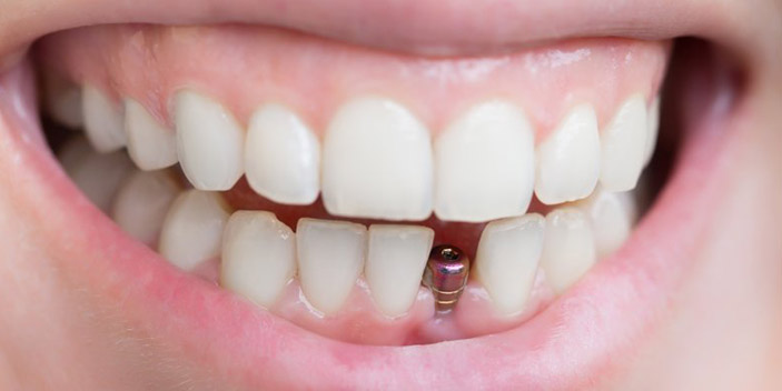 https://www.aestheticsmilesindia.com/wp-content/uploads/2021/01/dental-implant-cost.jpg