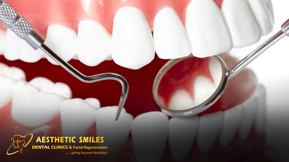 https://www.aestheticsmilesindia.com/wp-content/uploads/2021/02/THE-IMPORTANCE-OF-ORAL-HYGIENE-know-from-one-of-the-best-dentist-in-Mumbai.jpg