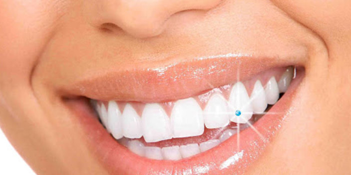 https://www.aestheticsmilesindia.com/wp-content/uploads/2021/02/tooth-jwellery-in-mumbai.jpg