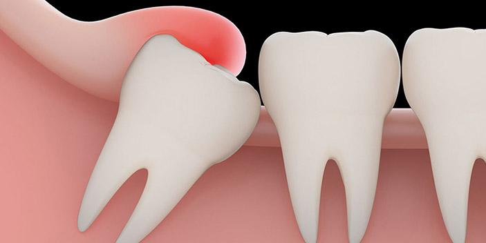 https://www.aestheticsmilesindia.com/wp-content/uploads/2021/02/wisdom-tooth-extraction-delhi.jpg