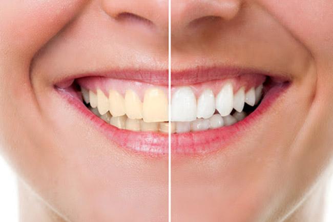 https://www.aestheticsmilesindia.com/wp-content/uploads/2021/03/Teeth-whitening-in-mumbai.jpg