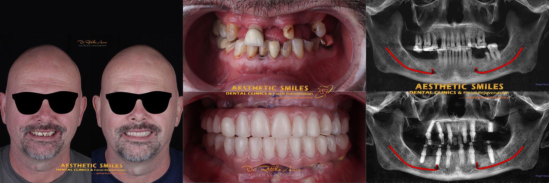 dental implants in mumbai case 1