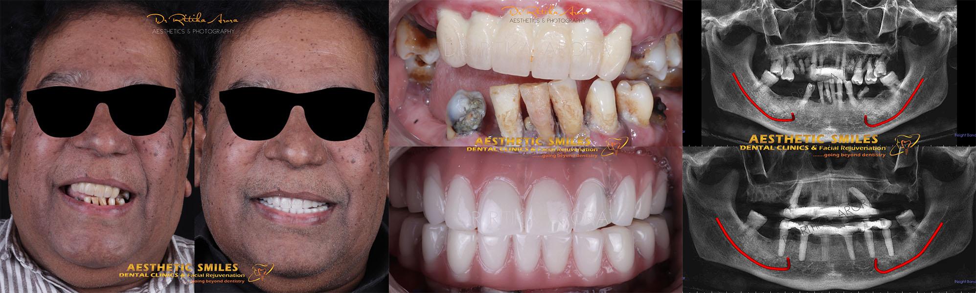 dental implants in mumbai case 2