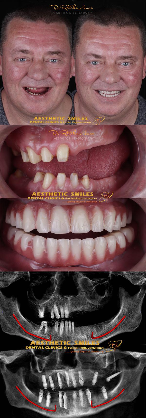 dental implants in mumbai case 4