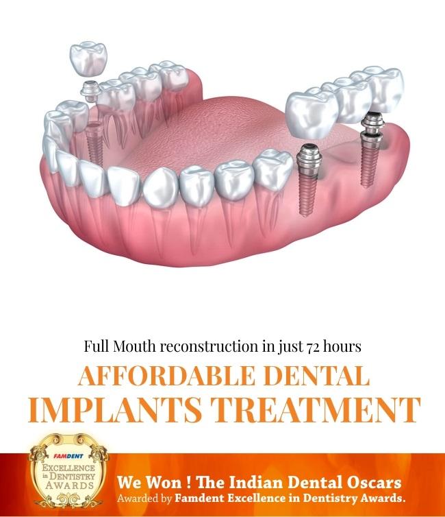 dental implants treatment in mumbai