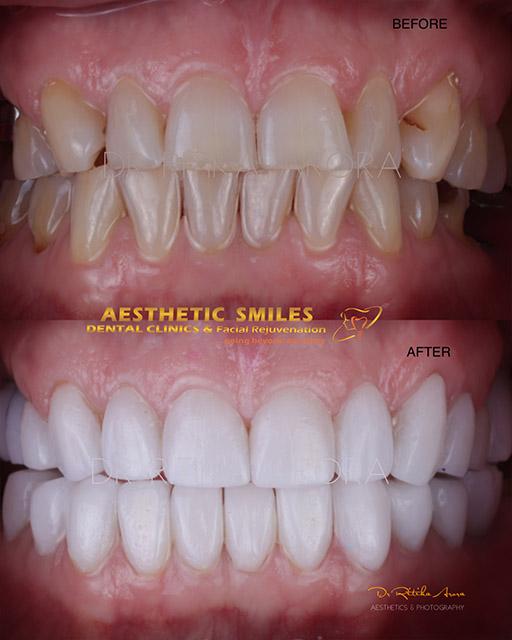 smile-makeover-in-mumbai-case-4