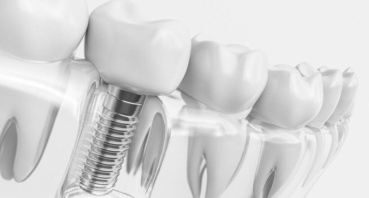 https://www.aestheticsmilesindia.com/wp-content/uploads/2021/05/cost-for-an-dental-implant-crown-in-mumbai-1191x640.jpg