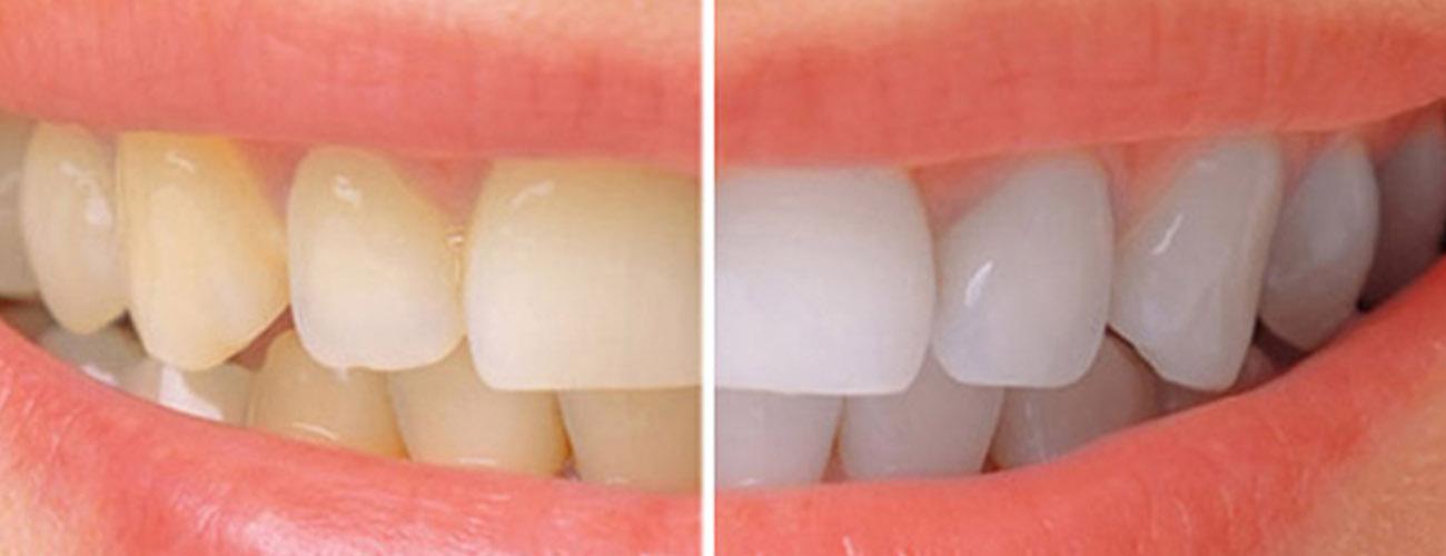 cost of teeth whitening in mumbai-big
