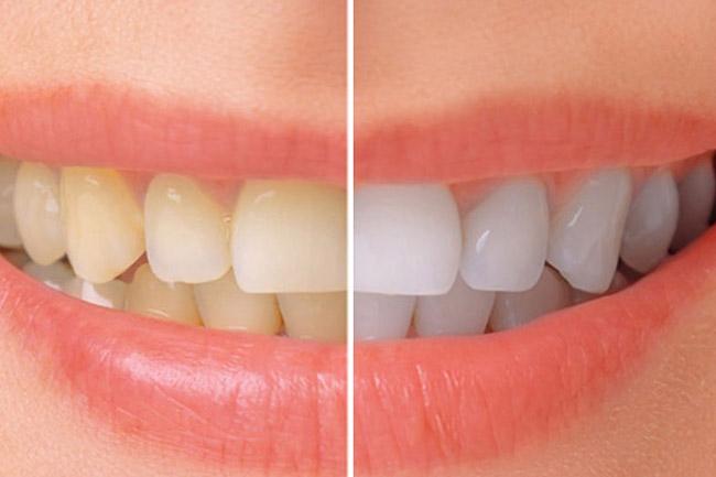https://www.aestheticsmilesindia.com/wp-content/uploads/2021/05/cost-of-teeth-whitening-in-mumbai.jpg