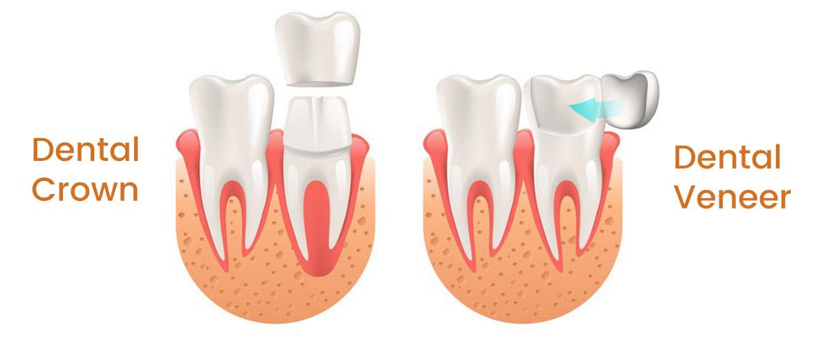 https://www.aestheticsmilesindia.com/wp-content/uploads/2021/06/Dental-Veneers-Vs-Dental-Crowns-in-mumbai.jpg