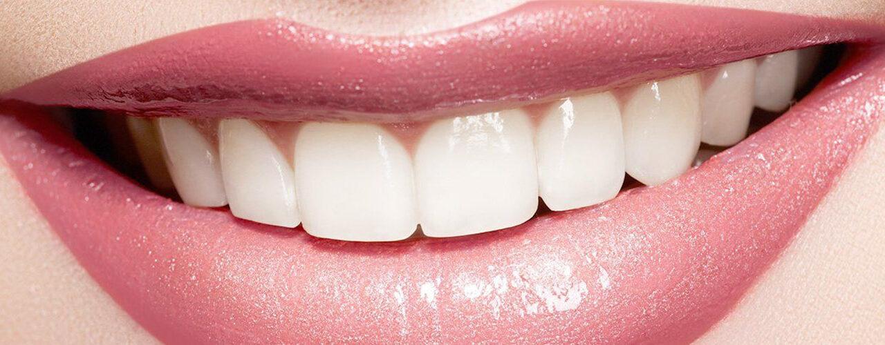 https://www.aestheticsmilesindia.com/wp-content/uploads/2021/06/Teeth-whitening-cost-in-Mumbai-1280x500.jpg