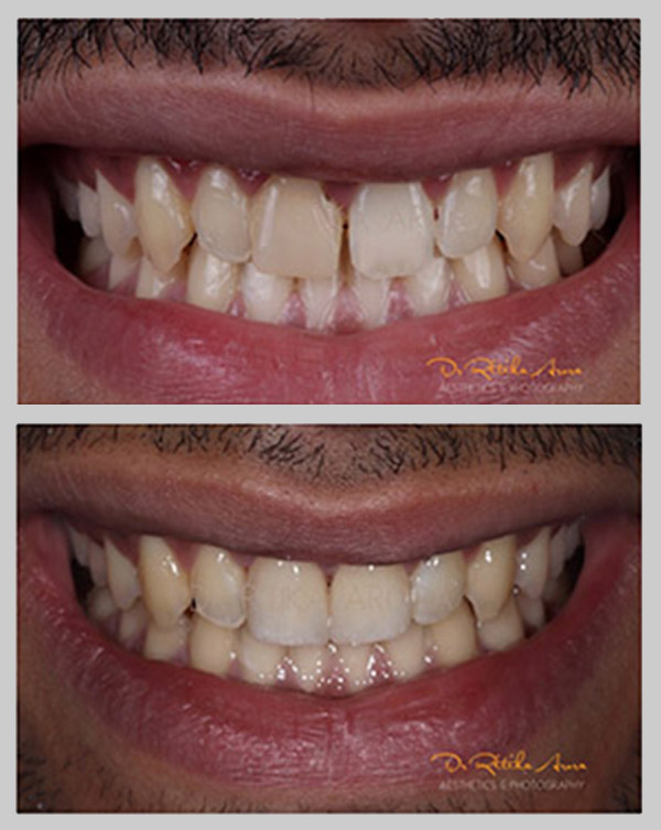 before-after-pic-1-dental-treatment