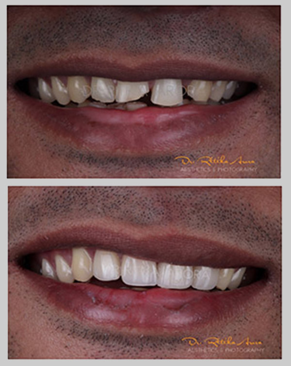 before-after-pic-3-dental-treatment