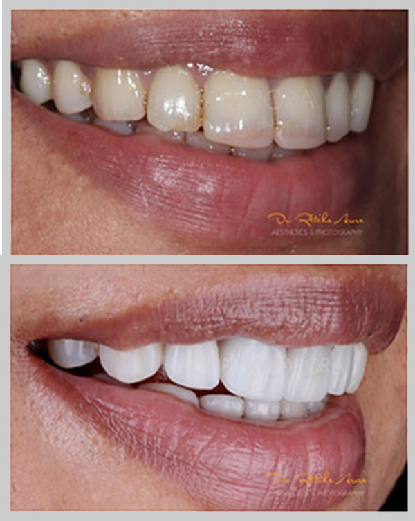 before-after-pic-5-dental-treatment