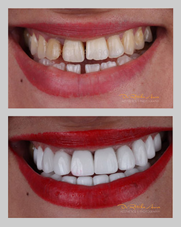 before-after-pic-6-dental-treatment