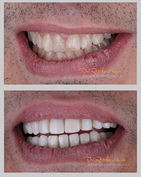 before-after-pic-dental-treatment