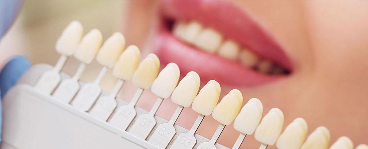 https://www.aestheticsmilesindia.com/wp-content/uploads/2021/08/cosmetic-dentistry-in-mumbai-best-cosmetic-dentist-india.jpg